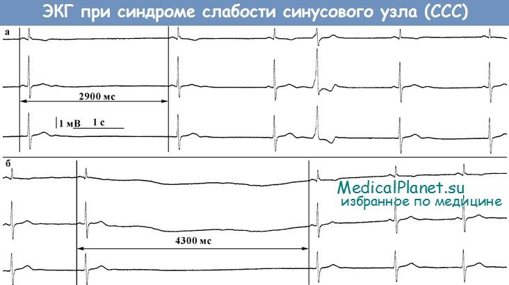 ЭКГ при синдроме слабости синусового узла