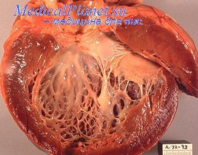 Атеросклероз сердца. Врожденные пороки сердца