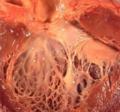 сифилис сердца
