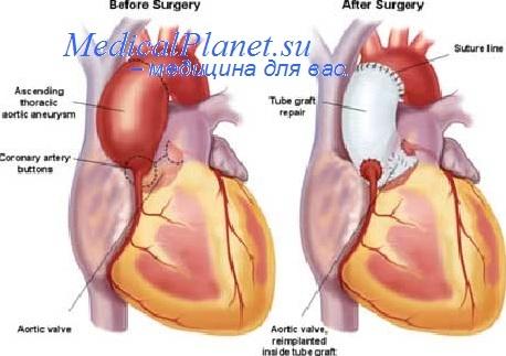 Периоды инфаркта миокарда. Сердечная недостаточность при ...