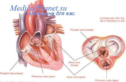 Пороки аортального клапана. Диагностика недостаточности ...