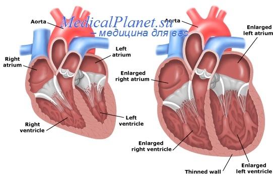 Смертность детей при атрезии легочной артерии. Причины смерти ...