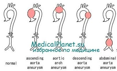 Нормальные размеры аорты и ее размеры при аневризме. Клиника ...