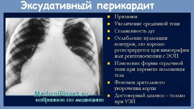 Перикардит при инфаркте миокарда