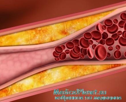 Повышенный холестерин лечение статинами