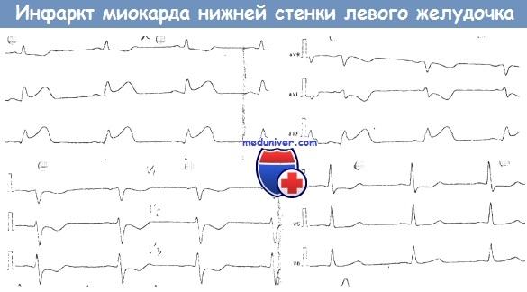 Если инфаркт по нижней стенке левого желудочка то страдает