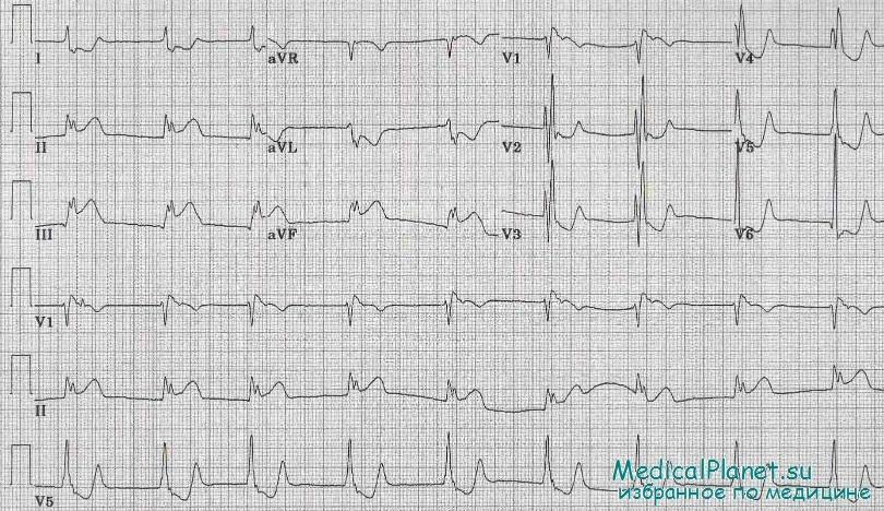инфаркт миокарда правого желудочка