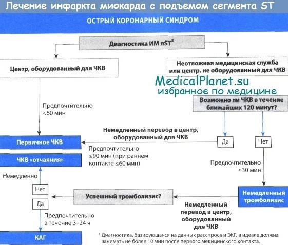 Лечение инфаркта миокарда с подъемом сегмента ST