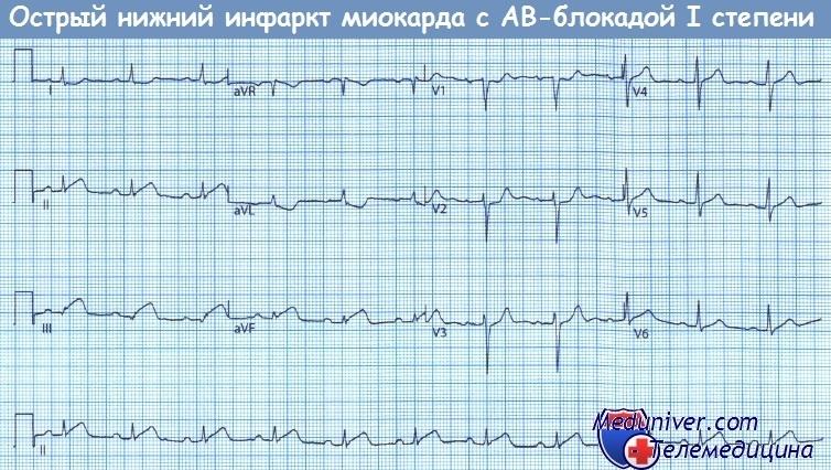 Острый нижний инфаркт миокарда с АВ-блокадой I степени