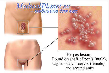 Герпес генитальный и беременность