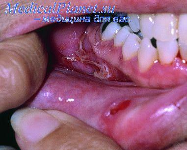 пемфигоид - буллезный эпидермолиз