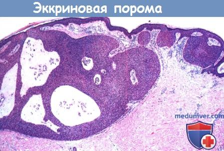 Гистология эккриновой поромы