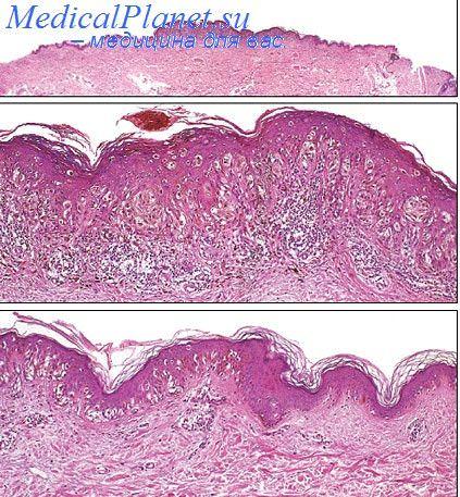 epidermis-vo-vlagalishe