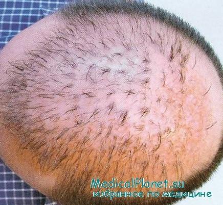Формула восстановления волос