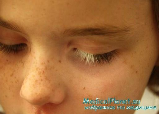 фото сыпи на ладошках у ребенка