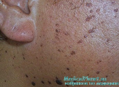 Черный папулезный дерматоз. Диагностика и лечение