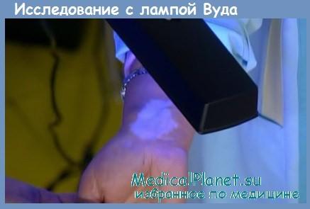 Исследование кожи лампой Вуда