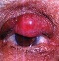 Карцинома из клеток Меркеля (ККМ)