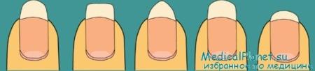 форма ногтей и маникюр