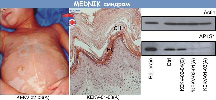 Синдром задержки умственного развития, энтеропатии, глухоты, периферической нейропатии, ихтиоза и кератодермии (MEDNIK-синдром)