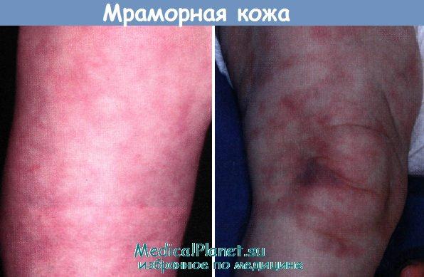 мраморная кожа