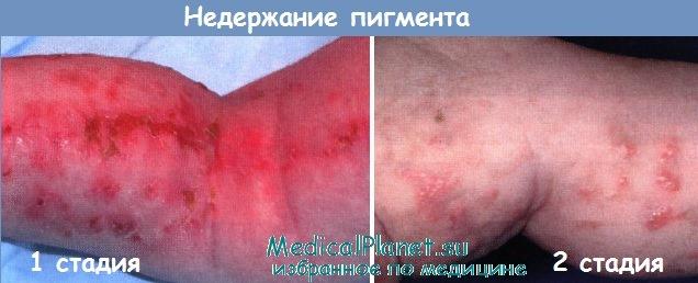 недержание пигмента - синдром Блоха-Сульцбергера