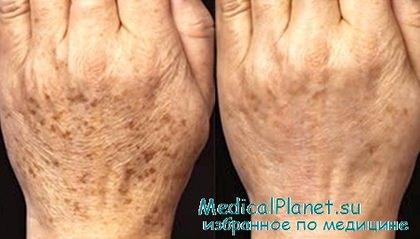 Как ухаживать за своей кожей на руках