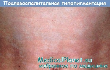 гипопигментация после воспаления