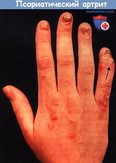 Симптомы и клиника псориатического артрита (ПсА)