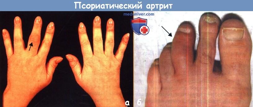 Течение и прогноз псориатического артрита (ПсА)