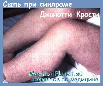 синдром Джанотти-Крости