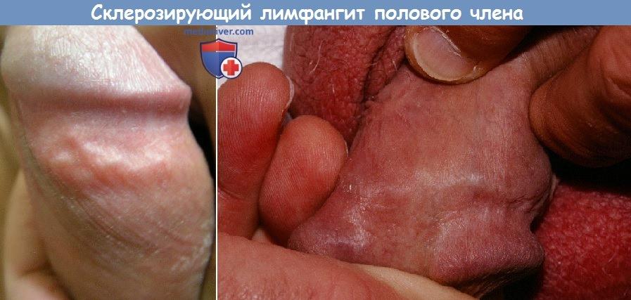 Lentiginosis of penis
