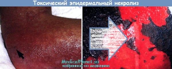 синдром Лайелла - токсический эпидермальный некролиз
