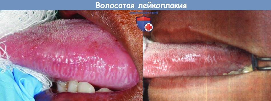 foto-volosatoy-leykoplakii