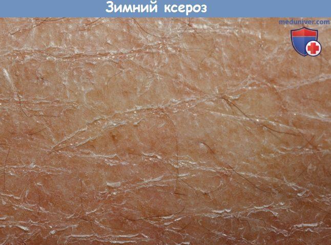 Зимний ксероз кожи при недостатке жирных кислот