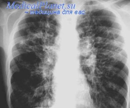 Муковисцидоз на рентгенограмме