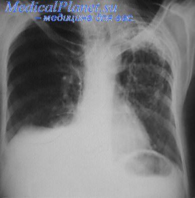 Рентгенограмма туберкулезного плеврита справа