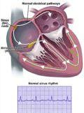 Патогенез легочного сердца. Проявления легочного сердца.