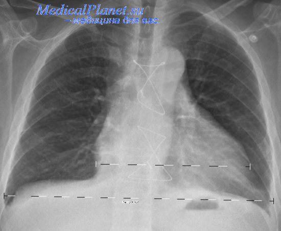 Усиленные Корни Структуры Лёгких