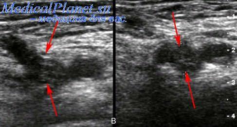 Анатомия вен верхних конечностей