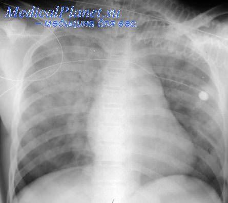 Жидкость в легких при пневмонии: диагностика и прокол