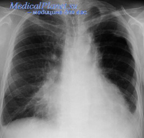 У грудных детей первичная пневмококковая фибринозная пневмония может рентгенологически выглядеть как...