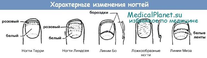 Характерные изменения ногтей при болезнях