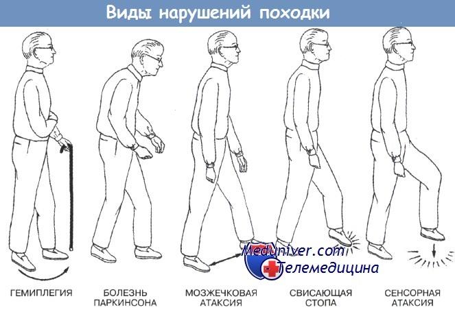 Виды нарушений походки