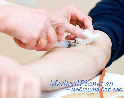 Профилактика и лечение варикоза ног
