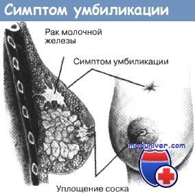 Симптом умбиликации