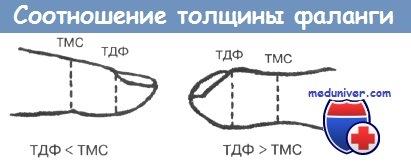 Соотношение толщины фаланги