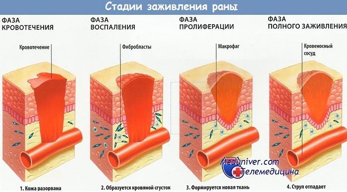 Стадии заживления раны