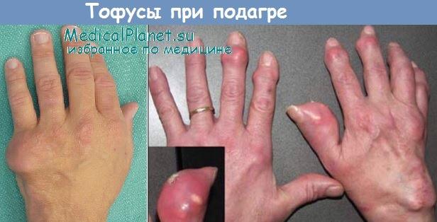 Тофусы на руках при подагре
