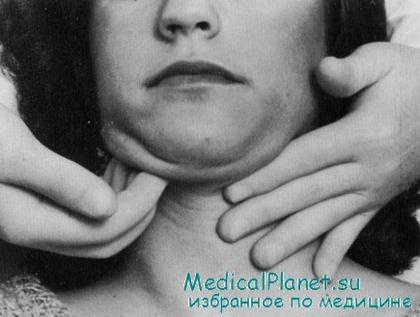 Лечат ли зубы с общим наркозом